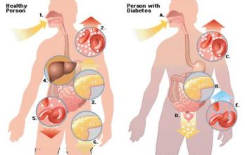 Obat Alami Penyakit Diabetes Yang Aman